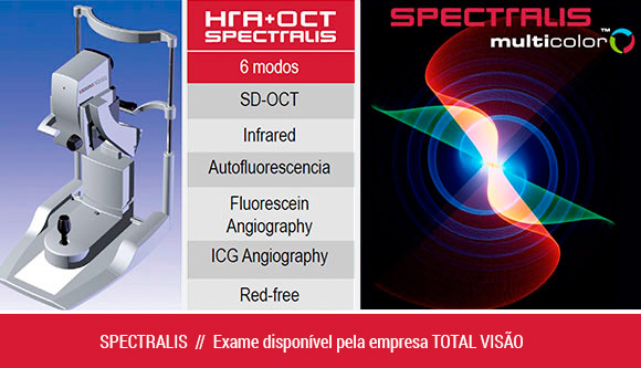 Spectralis Color Heidelberg Engineering